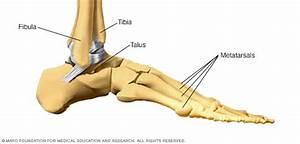 Broken Ankle  Broken Foot Disease Reference Guide