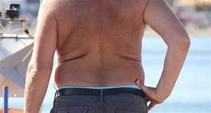 How to get rid of stretch marks - Read Health Related ...