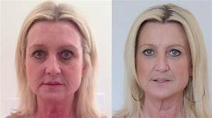 Dermal Fillers with Before after