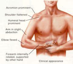 Shoulder Dislocation - Treat The Athlete