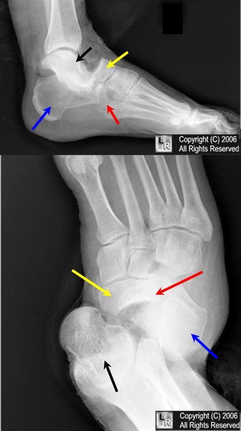 Chopart's Fracturedislocation
