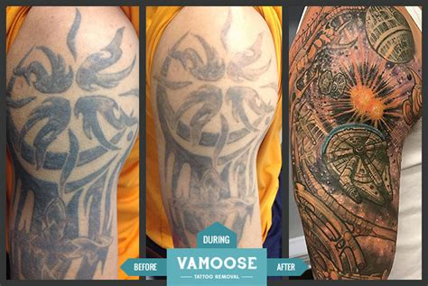 full  sleeve tattoo removal chicago il vamoose