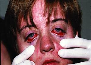 Nonpurulent Conjunctivitis And Facial Rash Of Measles One Day After