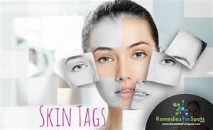 Moles   Warts And  Skintagsremoval Is The Best Guide For