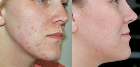 led light therapy before and after neolts light therapy system the baltimore center plastic