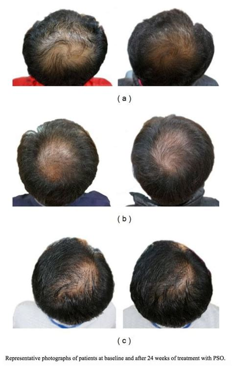 11 Best Natural DHT Blockers for Men   Hair loss causes
