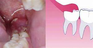 Problems With Erupting Wisdom Teeth  Signs  Symptoms  And
