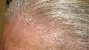 Psoriasis Pictures, Treatments, Symptoms