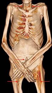 Embalming Incisions  Neck  Midline Abdomen  Scrotum  Upper