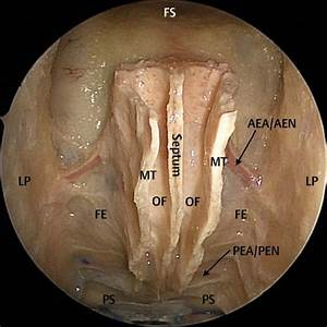 Endoscopic Resection of Anterior Cranial Fossa Tumors ...
