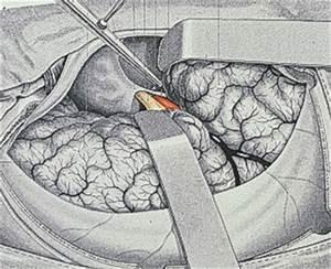 Craniotomy - Neurosurgical Medical Clinic, San Diego, CA