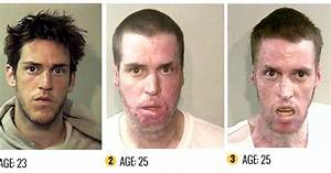 meth effects on skin - pictures, photos