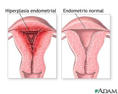 endometrial shedding without blood asociaci 243 n de endometriosis e infertilidad los