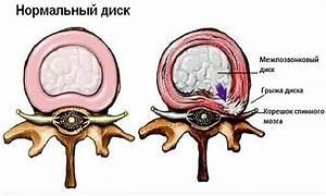 Гимнастика при геморрое от бубновского