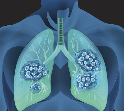 chances  lung nodule  spot  cancer
