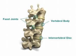 Cervical Facet Sprain  Neck Sprain