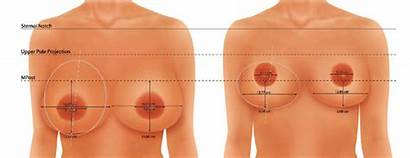 Breast Reduction Pills Cream Reduced Surgery Without