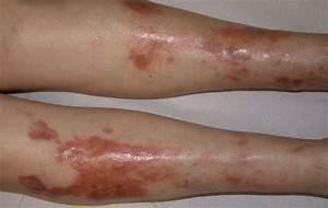 Лечение водянок на ногах при диабете