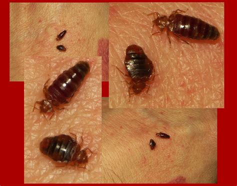 bed bugs flat still struggling with bed bugs here s how to fix it