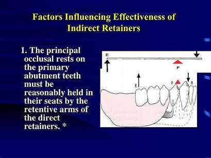 Indirect Retainers Retainer Rest Seat Ppt Rests