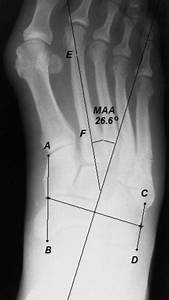 The Association Of Metatarsus Adductus To The Proximal Fifth Metatarsal Jones Fracture