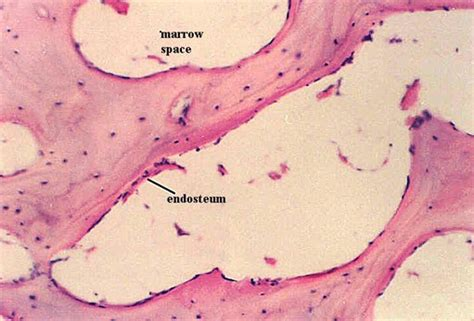 SPONGY BONE HISTOLOGY | Microanatomy Web Atlas | Gwen V ...