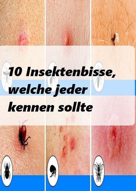 insektenbisse welche jeder kennen sollte gesudheit