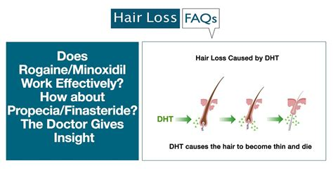 Does Rogaine/Minoxidil Work Effectively? How about