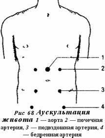 Лечение гипертонической болезни 2 стадии 3 степени риск 4