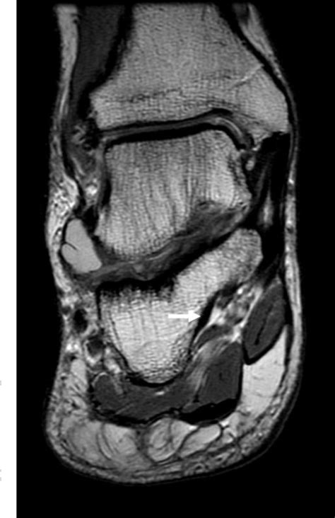 Figure 2 from An accessory peroneocalcaneus internus