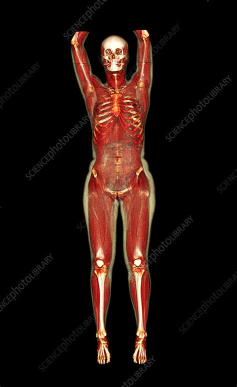 female body ct scan stock image p science
