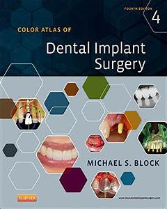 Color Atlas Of Dental Implant Surgery 4th Edition Read