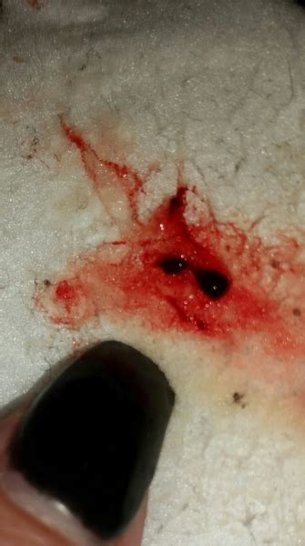 Blood Clots In Stool - tmi pic blood clot after bowel movement
