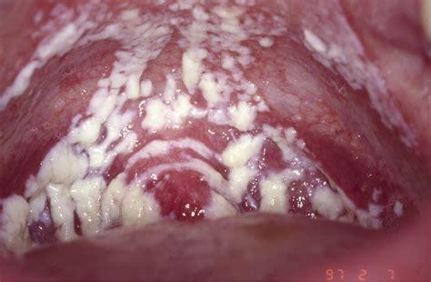 Wanita Hamil Flu Watrousap Period 7