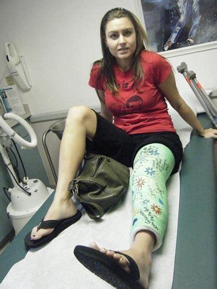 Leg Cast Arm Cast Long Leg Cast