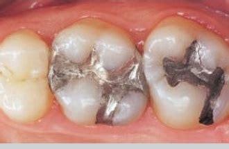 lade al mercurio 191 qu 233 es una amalgama amalgamas dentales qu 237 micos t 243 xicos