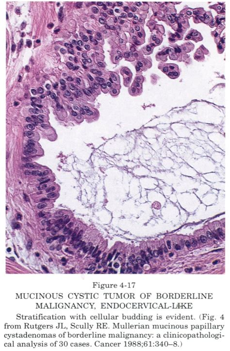 pathology outlines mucinous borderline tumors