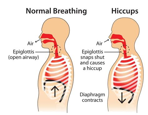Hiccups In Children Causes And Treatment Of Hiccups In