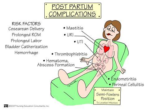 Maternal Child Nursing Mnemonics Nursessity