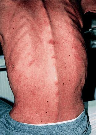 abc  palliative care hiv infection  aids  bmj