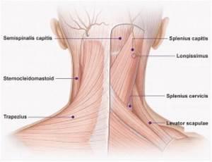 The trapeziusm levator scapulae and sternocleiodmastoid ...