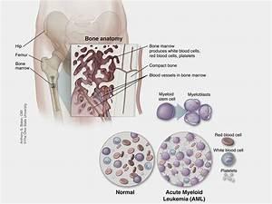 Body Diagram Skin Cancer