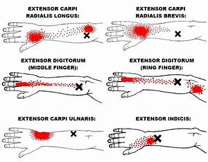 Wrist Extensors  Functional Anatomy Guide