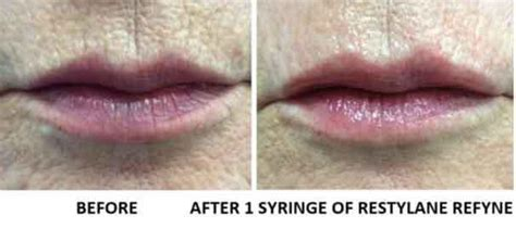 lip lines bismarck  pure skin aesthetic laser center