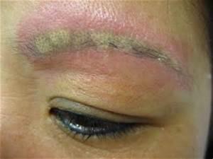 Semi Permanent Makeup Eyebrows Gone Wrong - Mugeek Vidalondon