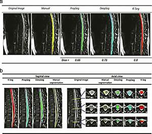 Examples Of Spinal Cord Segmentation On Sagittal And Axial