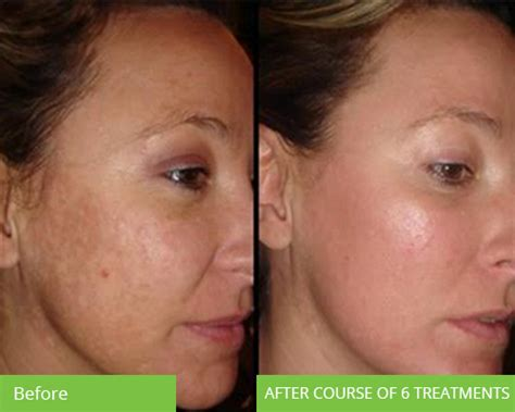 Photo Rejuvenation IPL Treatment - Skin Rejuvenation