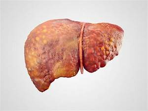 Liver cancer ri... Hepatitis B