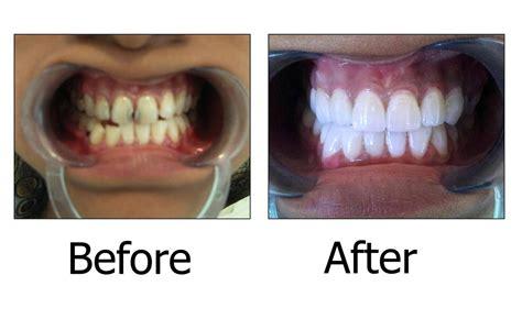 siege nocibe dental crowns crown dental practice 100 images say
