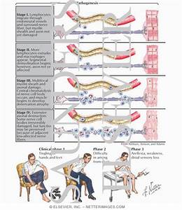Guillain-Barre syndrome . Causes, symptoms, treatment Guillain-Barre ... Guillain-barre Syndrome